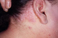 Scalp psoriasis and hair line psoriasis.