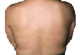 Psoriasis on back after UVB phototherapy.